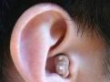 西门子耳道式助听器仅售398元/上海西门子助听器折扣店